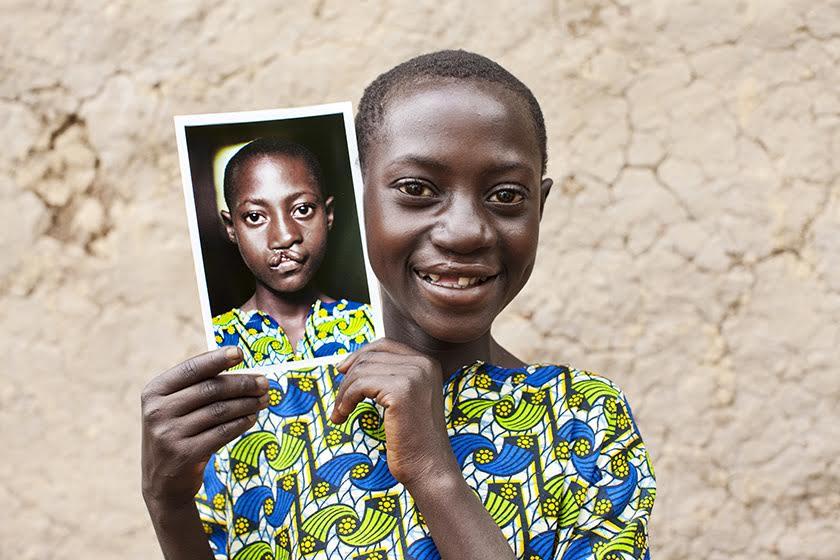 RWA_2010_Jacqueline_After_Follow-up for Russ Reid & OSI in Rwanda, June/July 2010. Patient Jacqueline.  (Operation Smile -  Peter Stuckings)