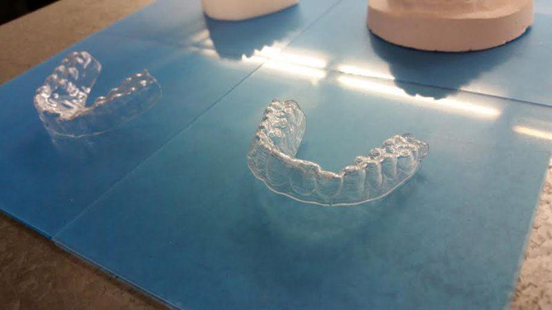 foto protesi denti 1