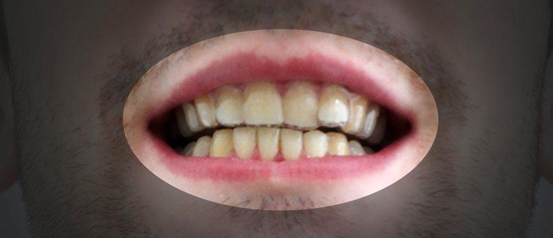 foto protesi denti 2