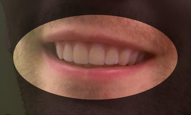 foto protesi denti 3